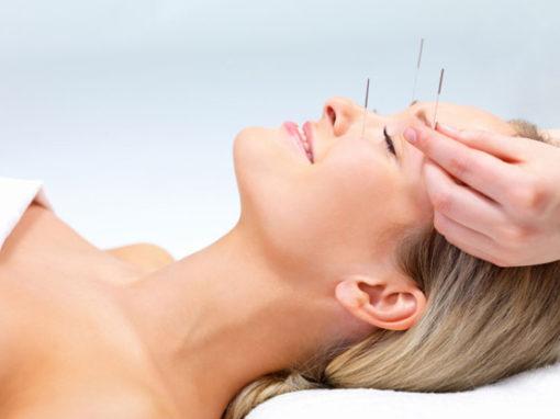 Lifting com acupuntura